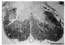 図2 未治療の脊椎